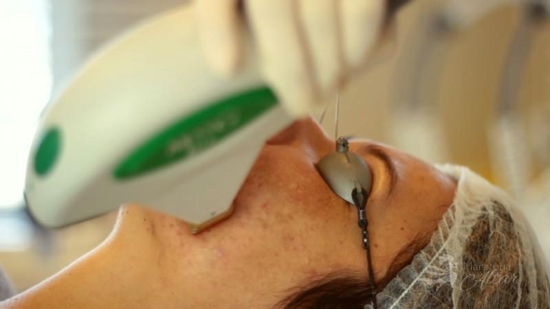 cuidados com a pele para o casamento - laser