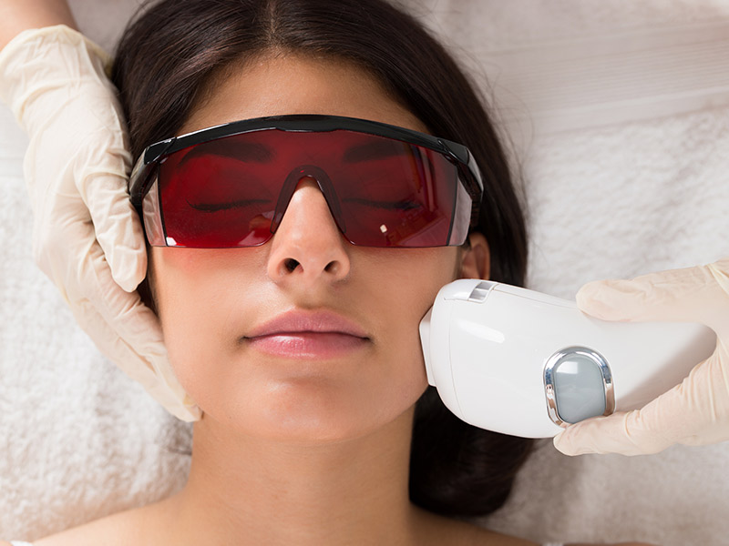 Cuidados antes depilar à laser antes do casamento