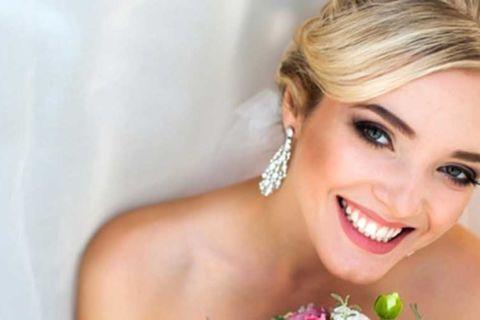 Lente de contato dental – Saiba tudo para garantir um sorriso lindo no seu casamento