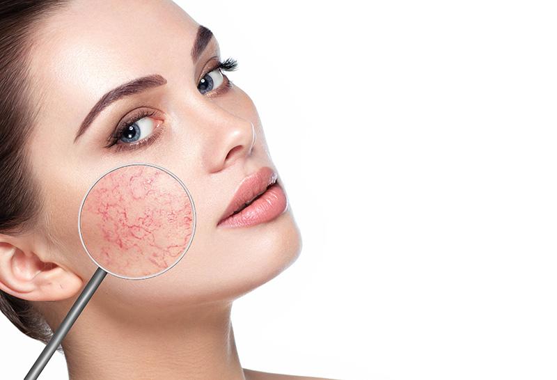 maquiagem para pele sensível